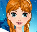 Frozen - Anna no Dentista